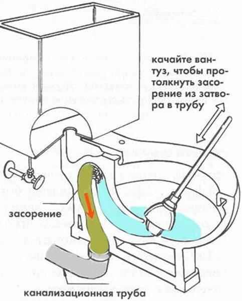 Засорился унитаз как прочистить в домашних условиях, что делать, чтобы устранить засор самостоятельно