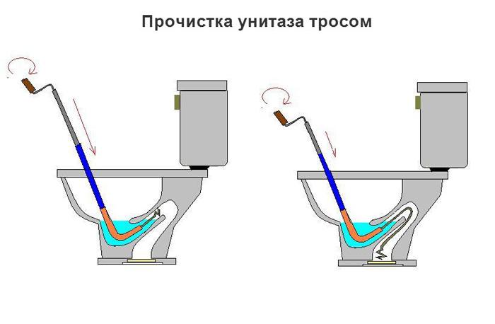 Как прочистить засор труб: способы (вантузом, химически, тросом) и места (в ванне, унитазе, раковине на кухне)