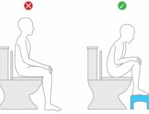 Почему нельзя долго сидеть на унитазе