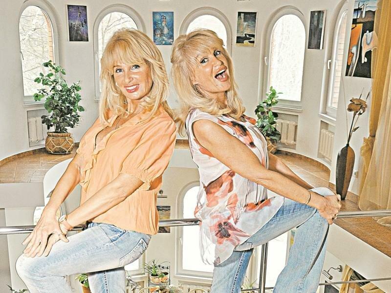 10 удивительных историй самых известных сиамских близнецов (16 фото)