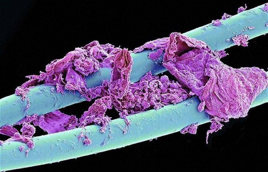 7 предметов в доме, которые кишат микробами, и способы их дезинфекции
