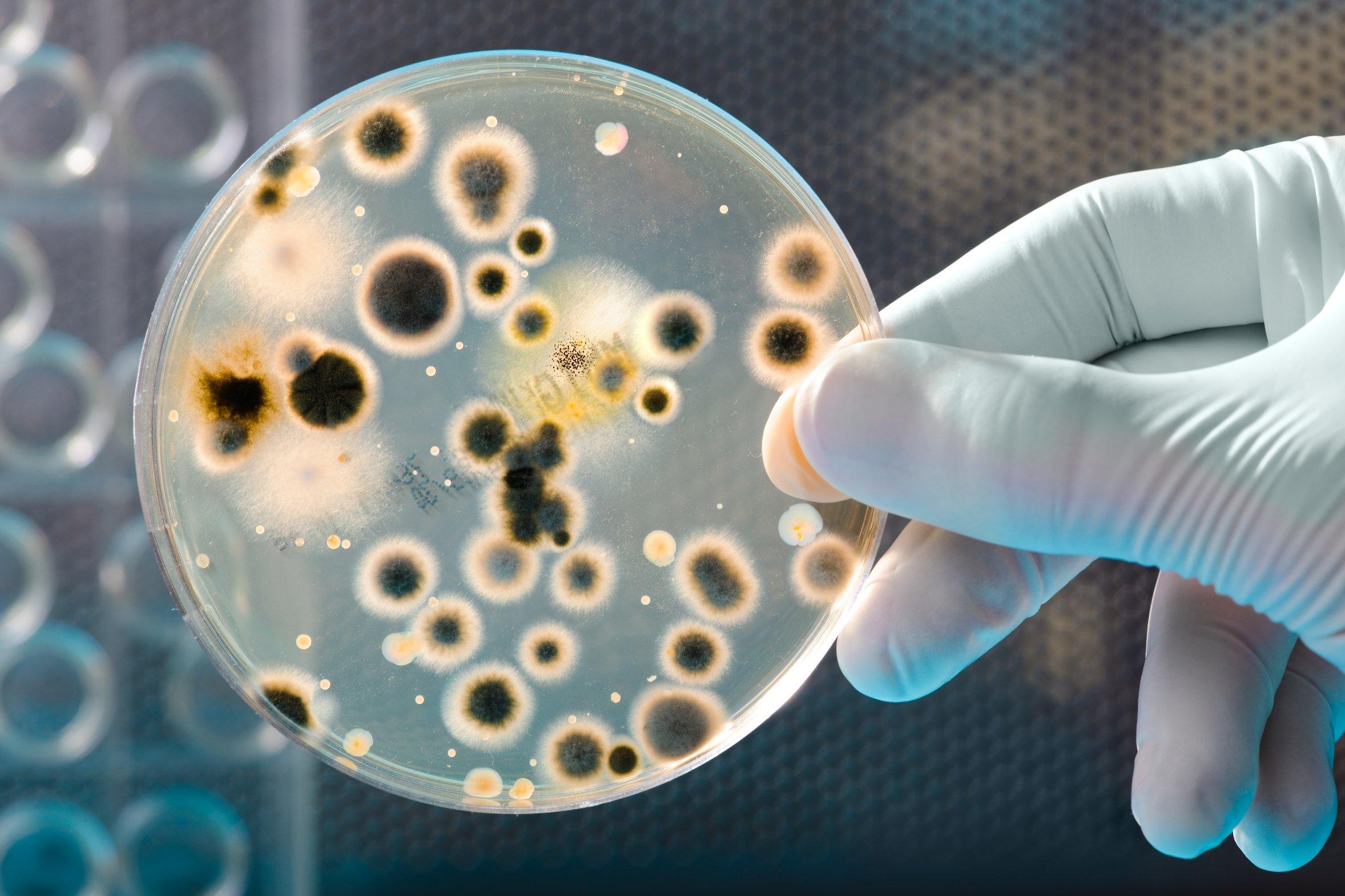 15 мест в вашем доме, которые кишат бактериями